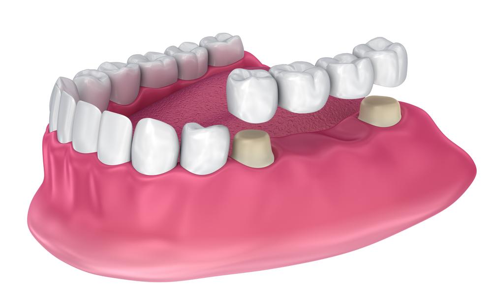 Системы работы с зубными моделями работа видео девушка модель в чате