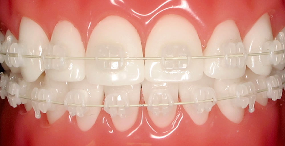 Керамические брекеты под цвет зубов