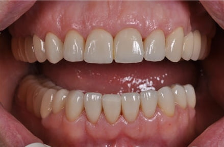 Отличия протезирования от имплантации зубов