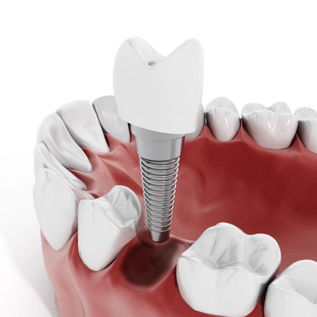 Альтернатива имплантации: что еще можно предложить пациентам