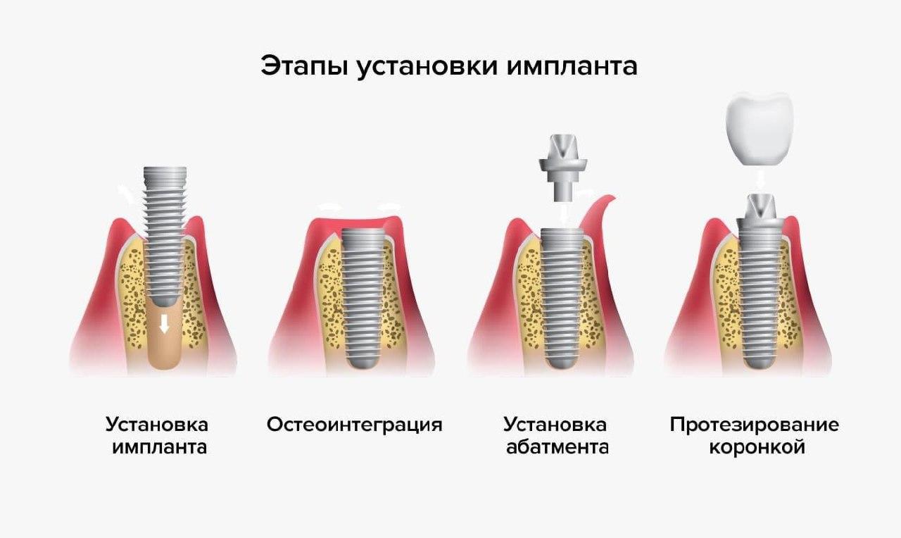 Этапы установки импланта: процедуры, особенности, сроки