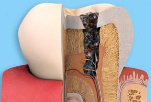 Пломбирование канала зуба
